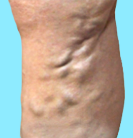 大伏在静脈瘤の写真