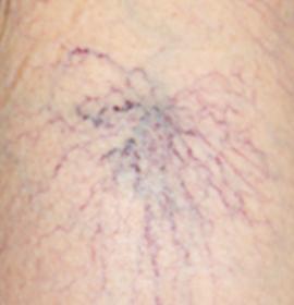 クモの巣状静脈瘤の写真